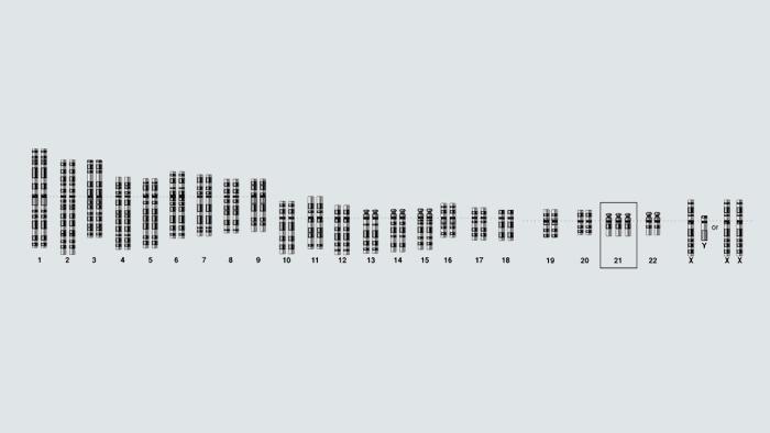 نمودار ژنوم تریزومی