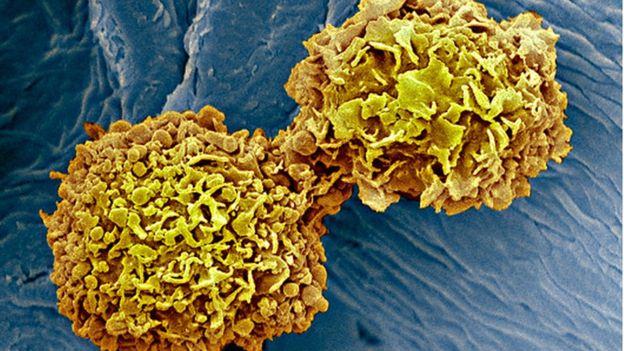 هورمون استروژن سلولهای سرطانی را تحریک میکند که بیشتر رشد کنند و تقسیم شوند